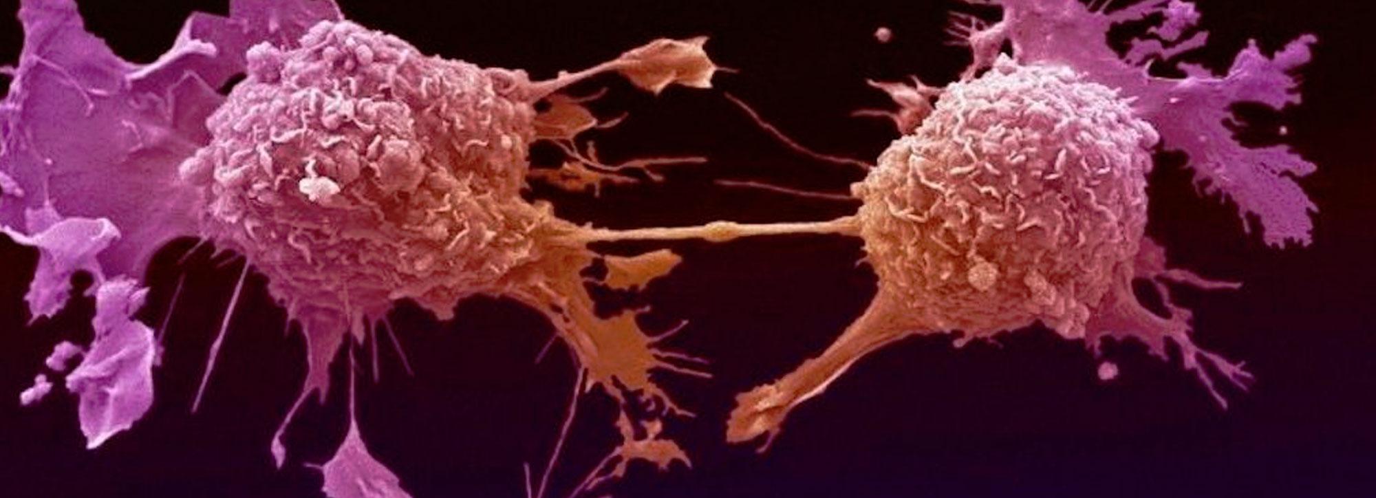 Cancer Cells Destroyed